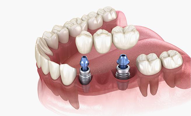farmadent-tratamiento-implantologia